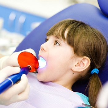 A young girl with her mouth open and a dentist using a curing light to harden the dental sealant