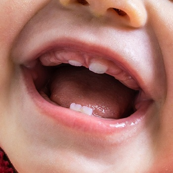 baby with primary teeth erupting